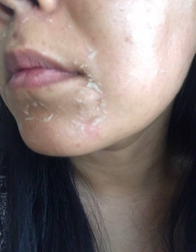 pca chemical peel