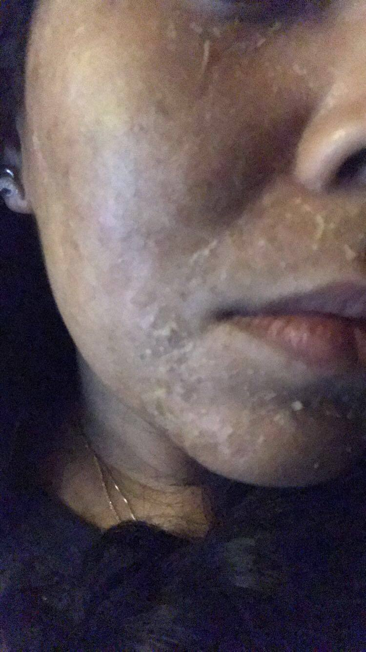 chemical peel photos